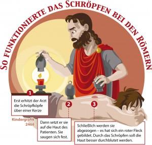 Kindergrafik: Wie funktionierte das Schröpfen bei den Römern? (09.01.2015)